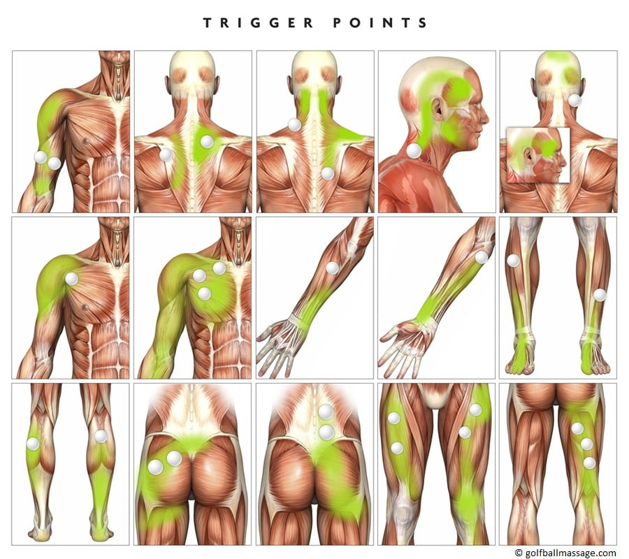 Trigger-Point-Therapie Archives - Physio Jorge Bazan