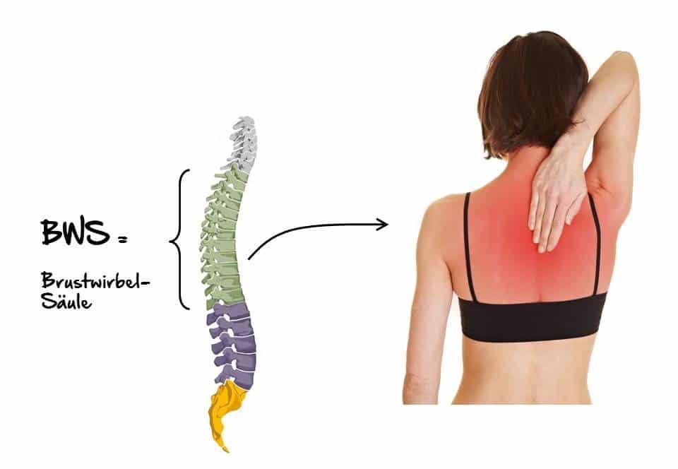 Rückenschmerzen der Brustwirbelsäule, Dorsalgie, BWS-Syndrom