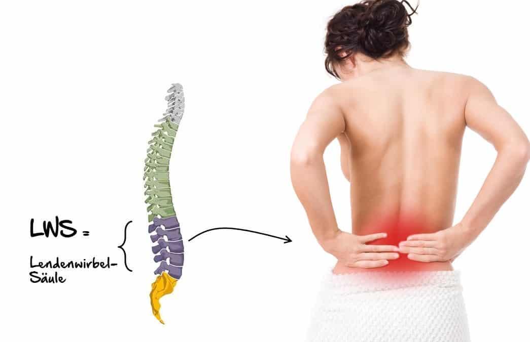 Rückenschmerzen, Lumbalgie, LWS-Syndrom, Lendenwirbelsäule