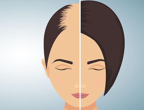 Osteopathie gegen stressbedingten Haarausfall